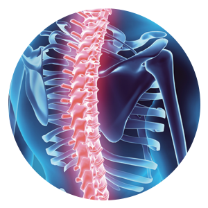 Image of an x-ray of a spine for the interventional medicine section
