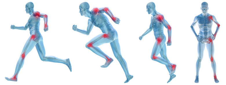 Image of xray bodies running for the regenerative therapy page